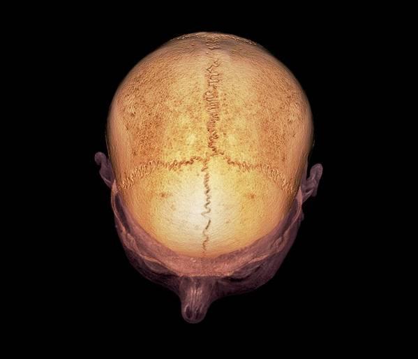 sagittal suture fusion - 599×514