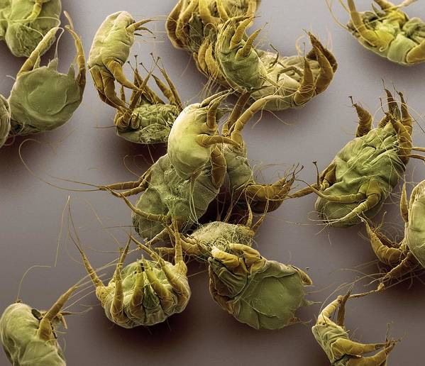 Animal Art Print featuring the photograph Sarcoptic Mange Mites, Sem by Steve Gschmeissner