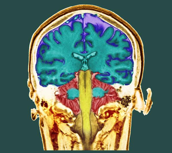 Healthy Brain Art Print featuring the photograph Healthy Brain, Mri Scan by