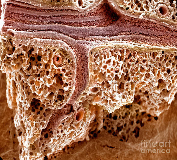 Sem Print featuring the photograph Mouse Lung, Sem by Science Source