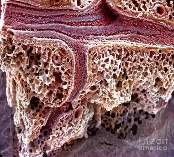 Sem Art Print featuring the photograph Mouse Lung, Sem by Science Source