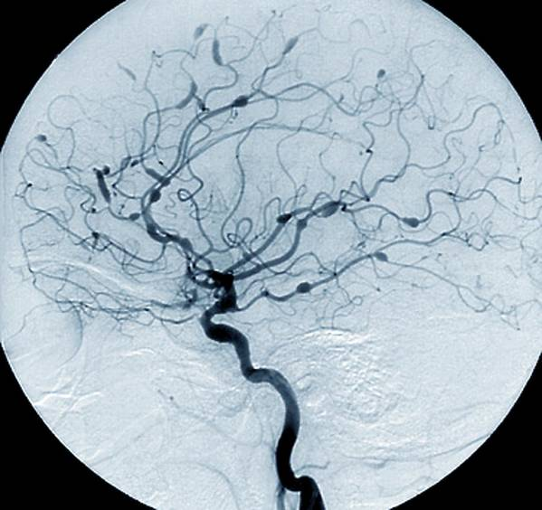 Carotid Angiogram Art Print featuring the photograph Cerebral Aneurysms In Lupus by Zephyr/science Photo Library