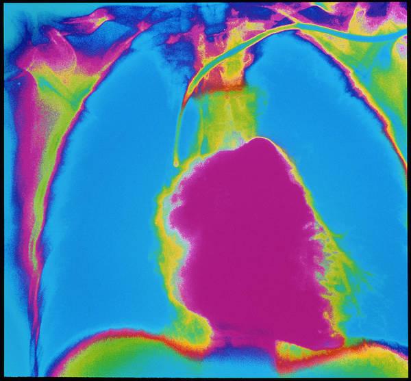 Pulmonary Angiogram Art Print featuring the photograph X-ray Of Heart by Mehau Kulyk/science Photo Library