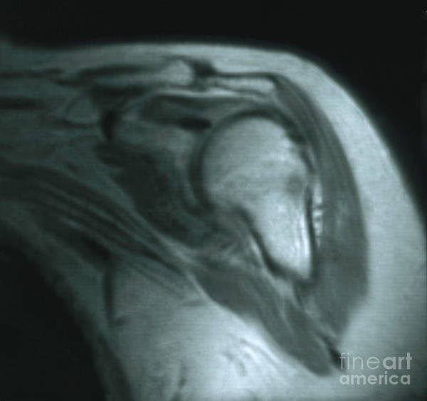 Magnetic Resonance Imaging Art Print featuring the photograph Mri Of Shoulder With Impingement by Science Source