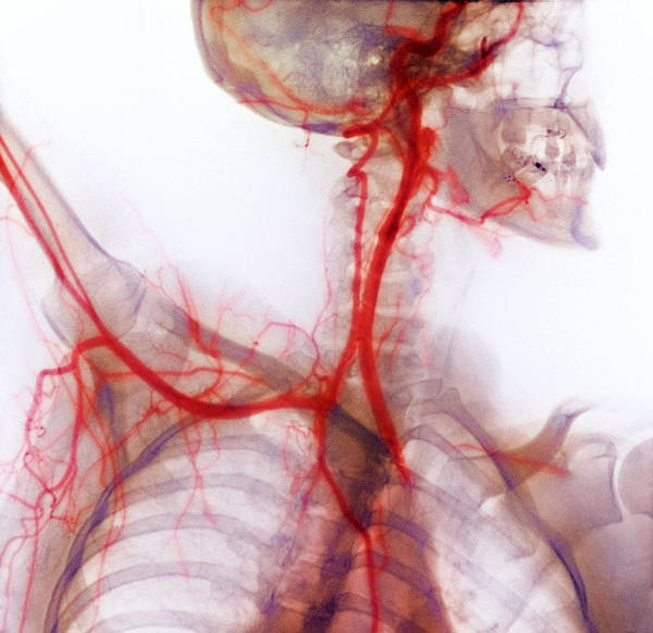 Subclavian Artery Art Print featuring the photograph Neck And Shoulder Arteries, X-ray by Cnri