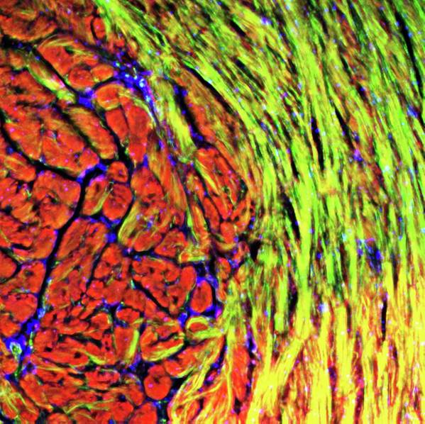 Tissue Art Print featuring the photograph Cardiac Muscle 2 by R. Bick, B. Poindexter, Ut Medical School