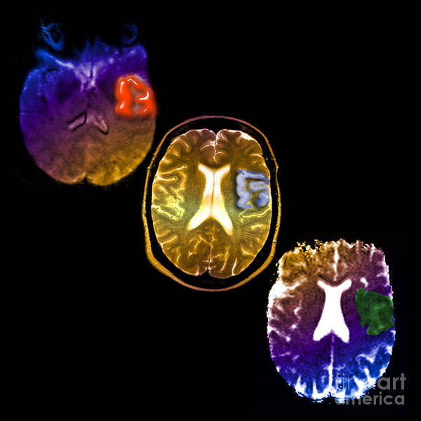 Mri Of Stroke Art Print featuring the photograph Acute Stroke by Living Art Enterprises