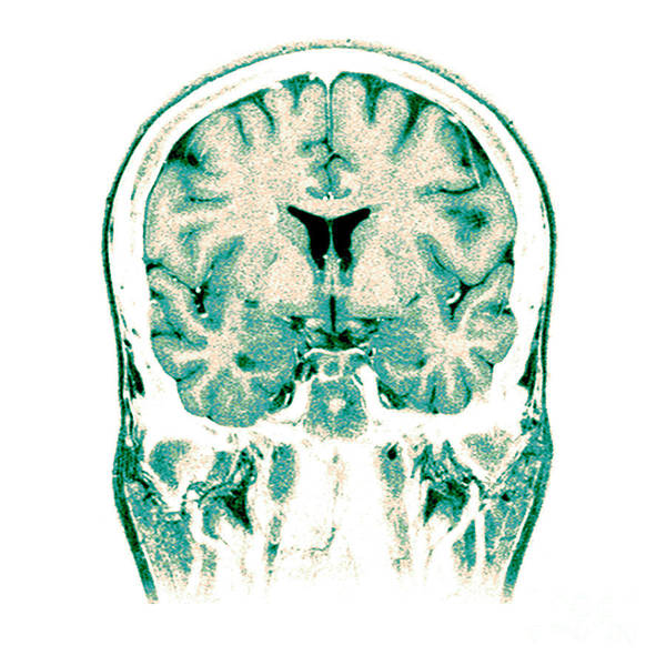 Normal Art Print featuring the photograph Normal Coronal Mri Of The Brain by Medical Body Scans