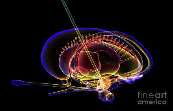 Parkinson's Disease Art Print featuring the photograph Deep Brain Stimulation by K H Fung/science Photo Library