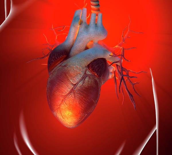 Event Art Print featuring the digital art Heart Attack, Conceptual Artwork by Science Photo Library - Roger Harris