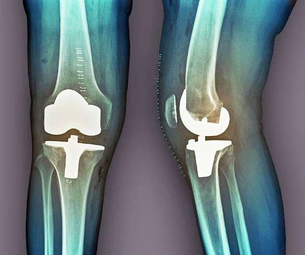Artificial Art Print featuring the photograph Total Knee Replacement, X-rays by Zephyr