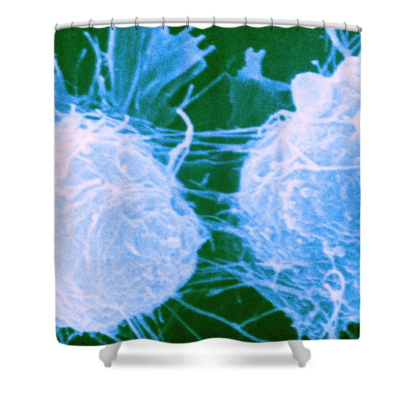 Cancer Shower Curtain featuring the photograph Neuroblastoma, Sem by Biology Pics