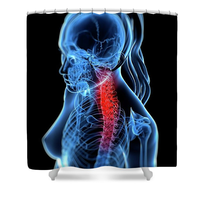 Anatomy Shower Curtain featuring the digital art Back Pain, Conceptual Artwork by Sciepro