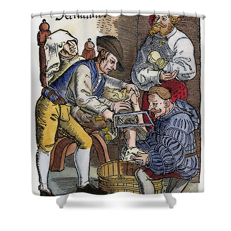 1540 Shower Curtain featuring the photograph Amputation, 1540 by Granger