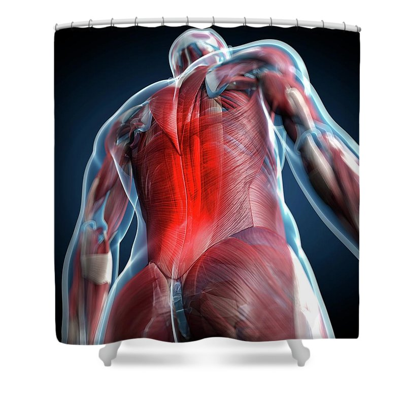 Physiology Shower Curtain featuring the digital art Back Pain, Conceptual Artwork by Science Photo Library - Sciepro