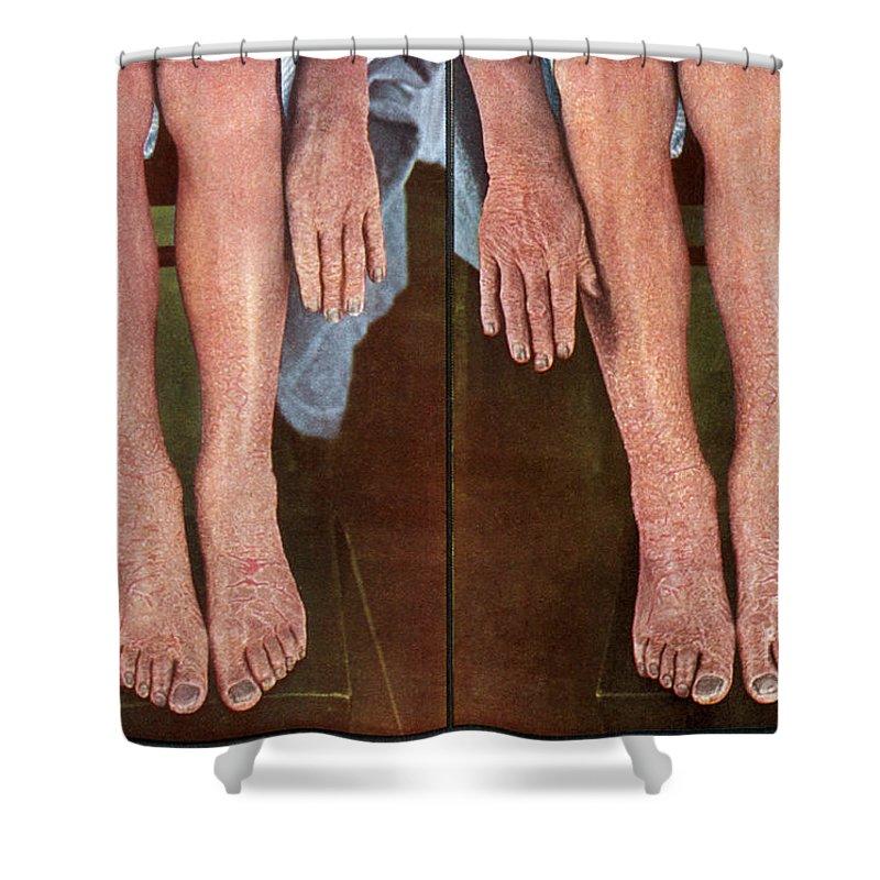 Dermatitis Exfoliativa, Vintage Shower Curtain for Sale by DoubleVision