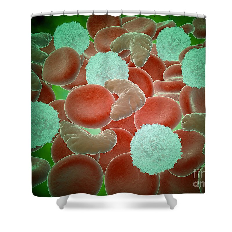 Abundance Shower Curtain featuring the digital art Sickle Cell Anemia With Red Blood Cells by Stocktrek Images