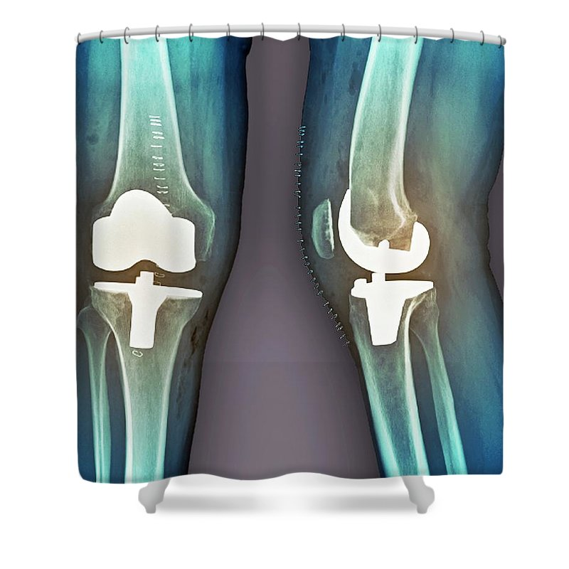 Artificial Shower Curtain featuring the photograph Total Knee Replacement, X-rays by Zephyr