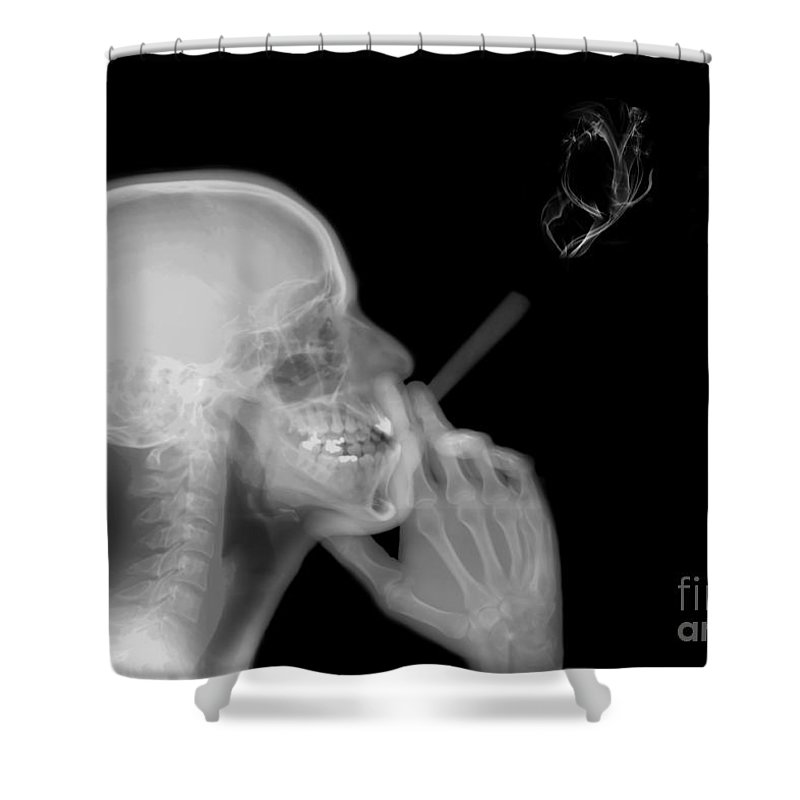 Smoking Shower Curtain featuring the photograph X-ray Of A Man Smoking A Cigarette by Guy Viner
