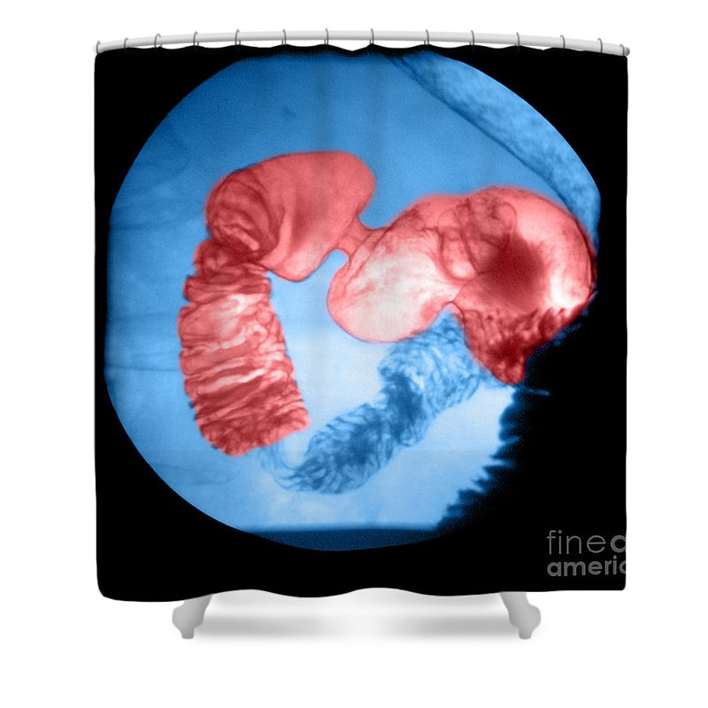 Anatomy Shower Curtain featuring the photograph Distal Stomach And Duodenum by Medical Body Scans