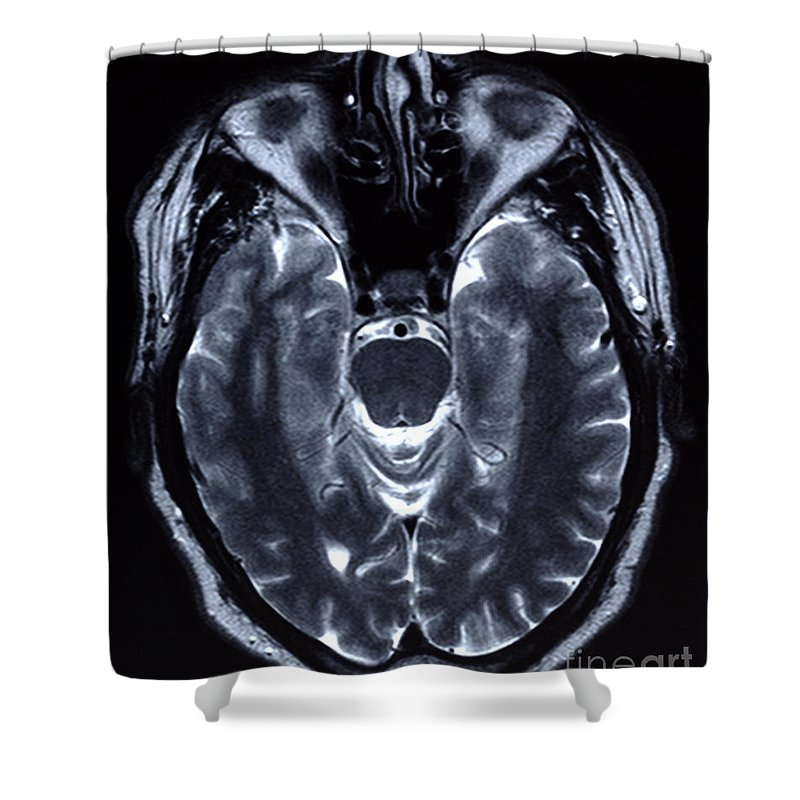 Medical Shower Curtain featuring the photograph Human Brain by Ted Kinsman