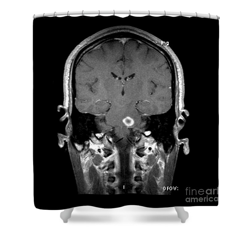 Brain Shower Curtain featuring the photograph Mri Of Acute Ms by Medical Body Scans
