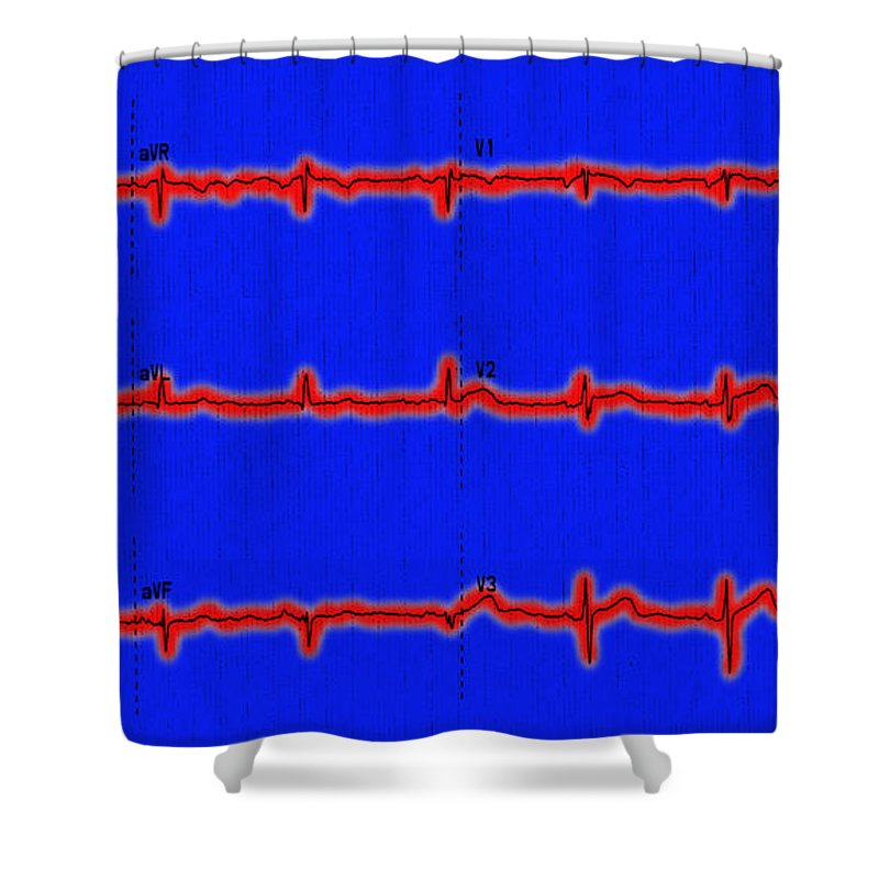 Ecg Shower Curtain featuring the photograph Normal Ecg by Science Source