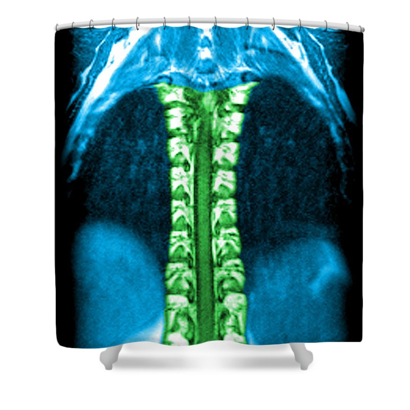 Magnetic Resonance Image Shower Curtain featuring the photograph Mri Of Normal Thoracic Spinal Cord by Medical Body Scans