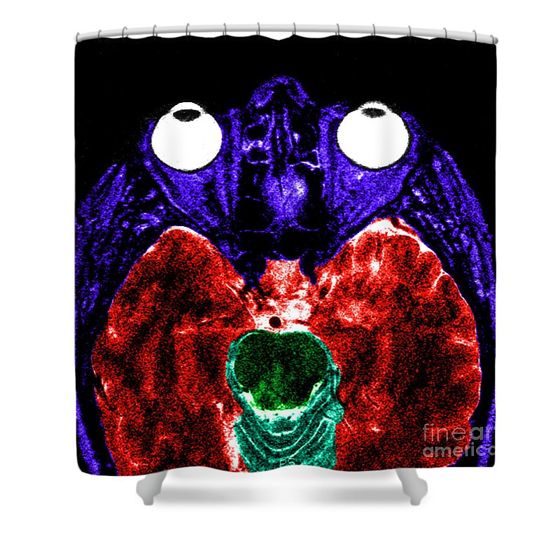 Brain Shower Curtain featuring the photograph Mri Of Normal Brain by Science Source