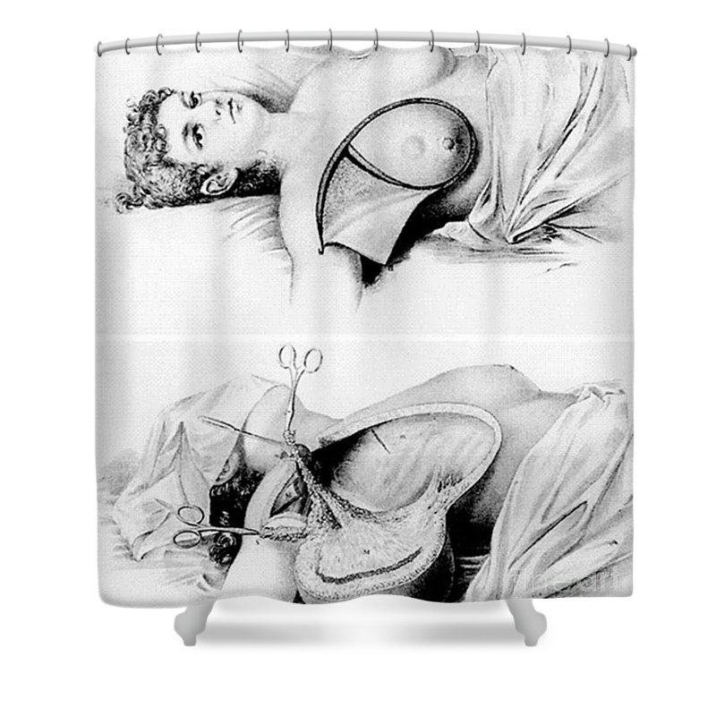 Medical Shower Curtain Featuring The Photograph Halsted Radical Mastectomy Incision By Science Source
