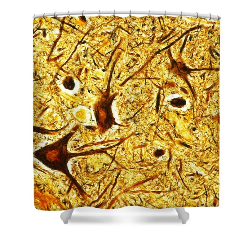 Nerve Tissue Shower Curtain featuring the photograph Nerve Tissue by MI Walker