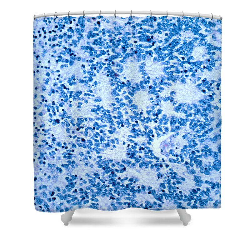 Neuroblastoma Shower Curtain featuring the photograph Neuroblastoma by Science Source