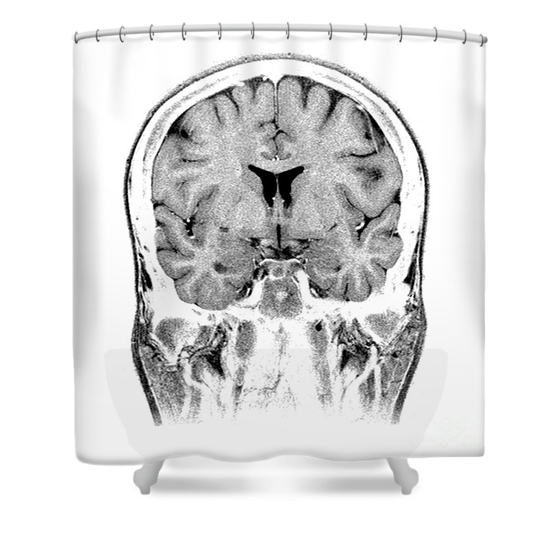 Magnetic Resonance Imaging Shower Curtain Featuring The Photograph Normal Coronal Mri Of Brain By Medical