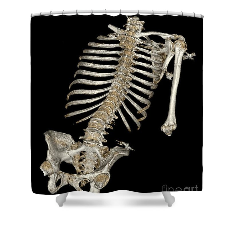 Science Shower Curtain featuring the photograph Skeletal Reconstruction by Science Source