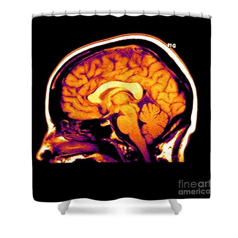 Brain Shower Curtain featuring the photograph Mri Of Brain by Medical Body Scans