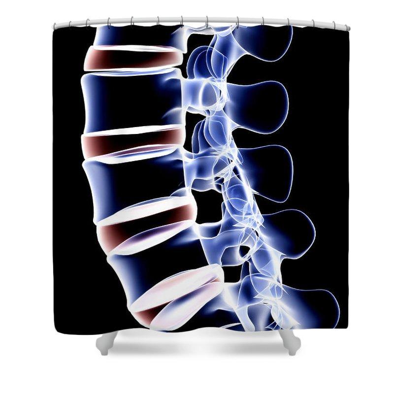 Human Vertebra Shower Curtain featuring the digital art The Lumbar Vertebrae by Medicalrf.com