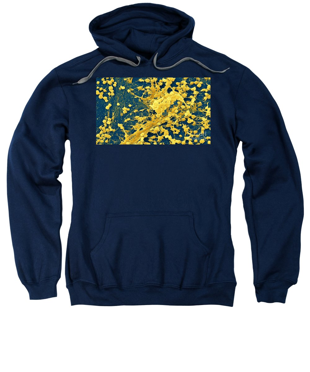 Bacteria Sweatshirt featuring the photograph Staphylococcus Biofilm by Science Source