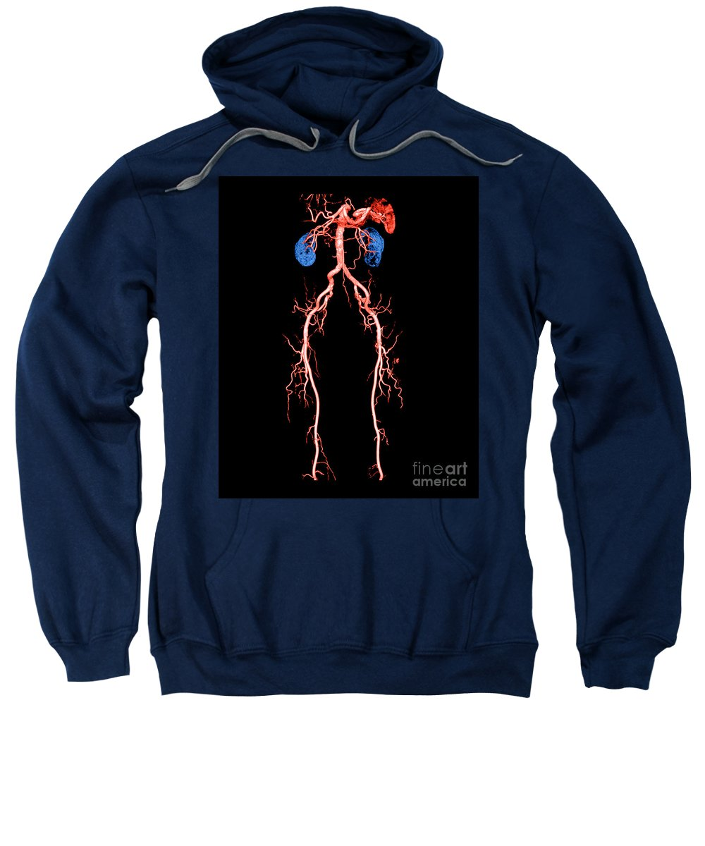 Abdominal Aorta Sweatshirt featuring the photograph Ct Angiogram Of Abdomen And Legs by Medical Body Scans