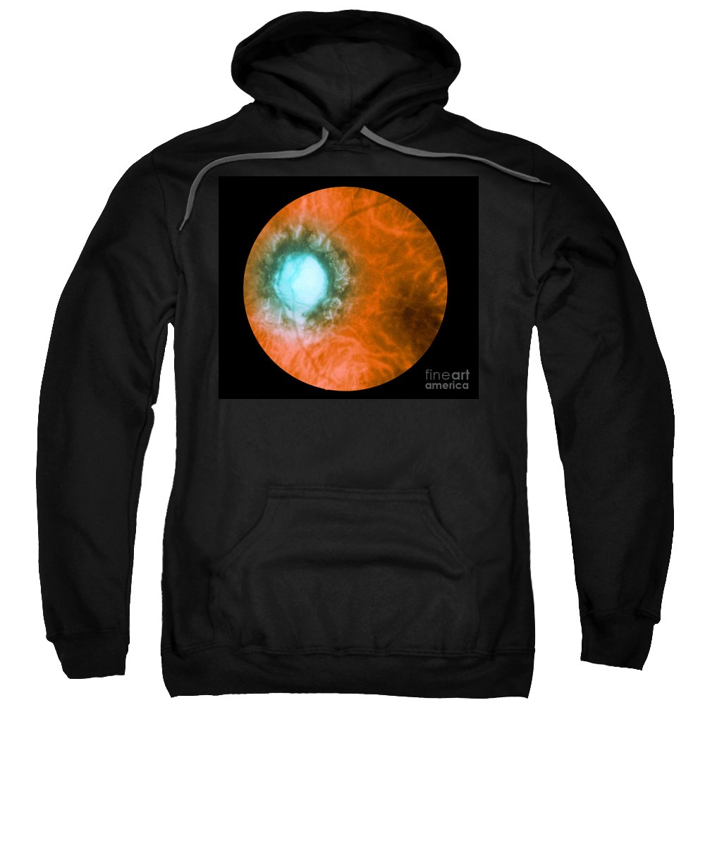 Bacteria Sweatshirt featuring the photograph Retina Infected By Syphilis by Science Source