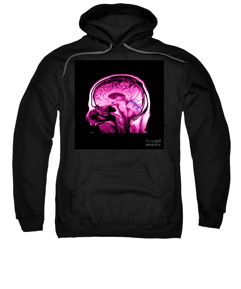Abnormal Mri Brain Sweatshirt featuring the photograph Mri Of Alcoholism Related Vermian by Medical Body Scans