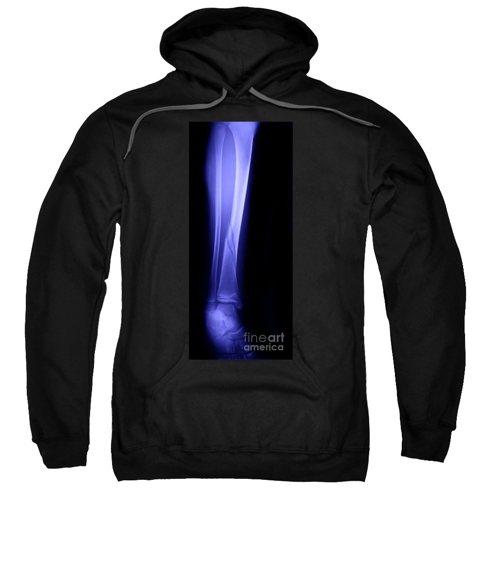 Xray Sweatshirt featuring the photograph X-ray Of Fractured Tibia by Ted Kinsman