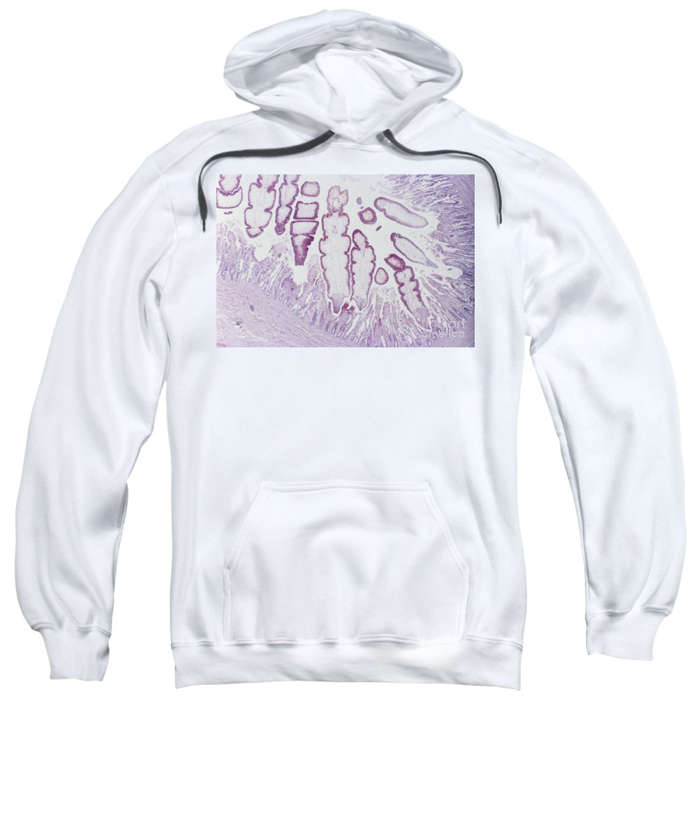 Parasitology Sweatshirt featuring the photograph Tapeworms In Whale Intestine Lm by M. I. Walker