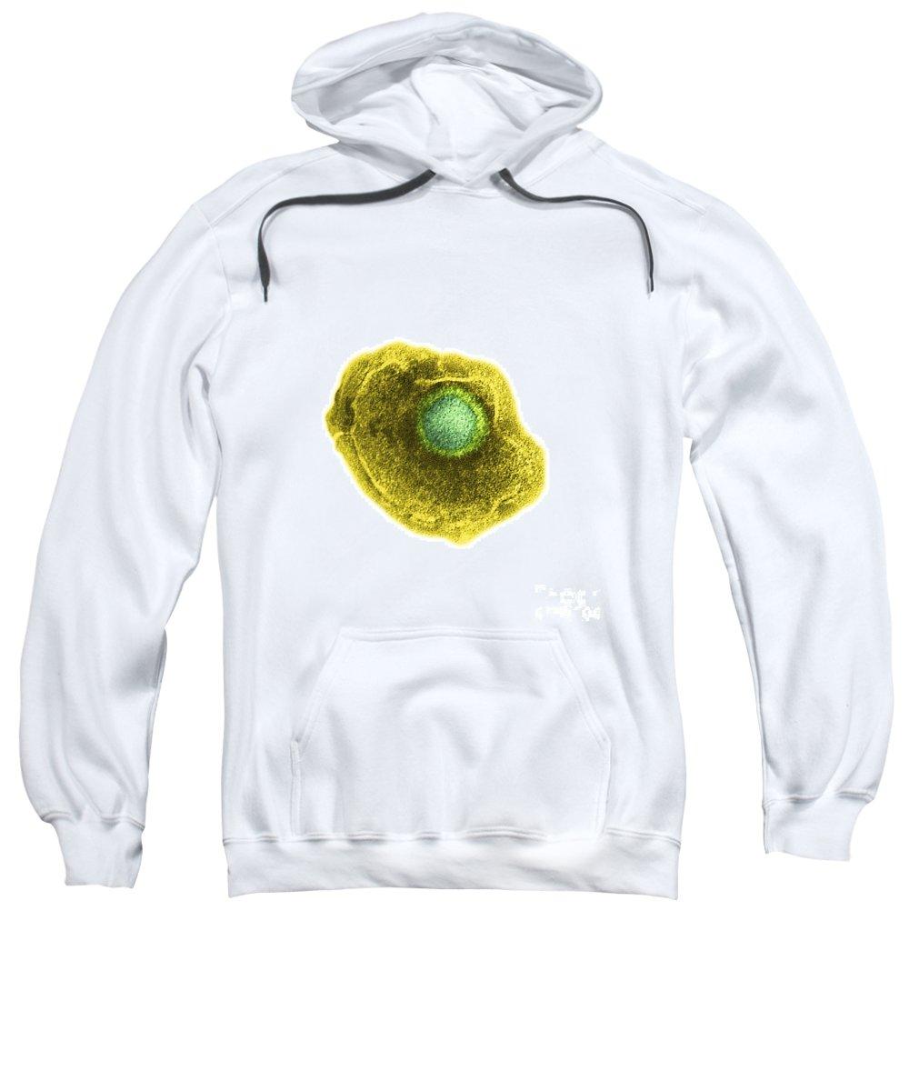 Chickenpox Sweatshirt featuring the photograph Varicella Chickenpox Virus by Science Source