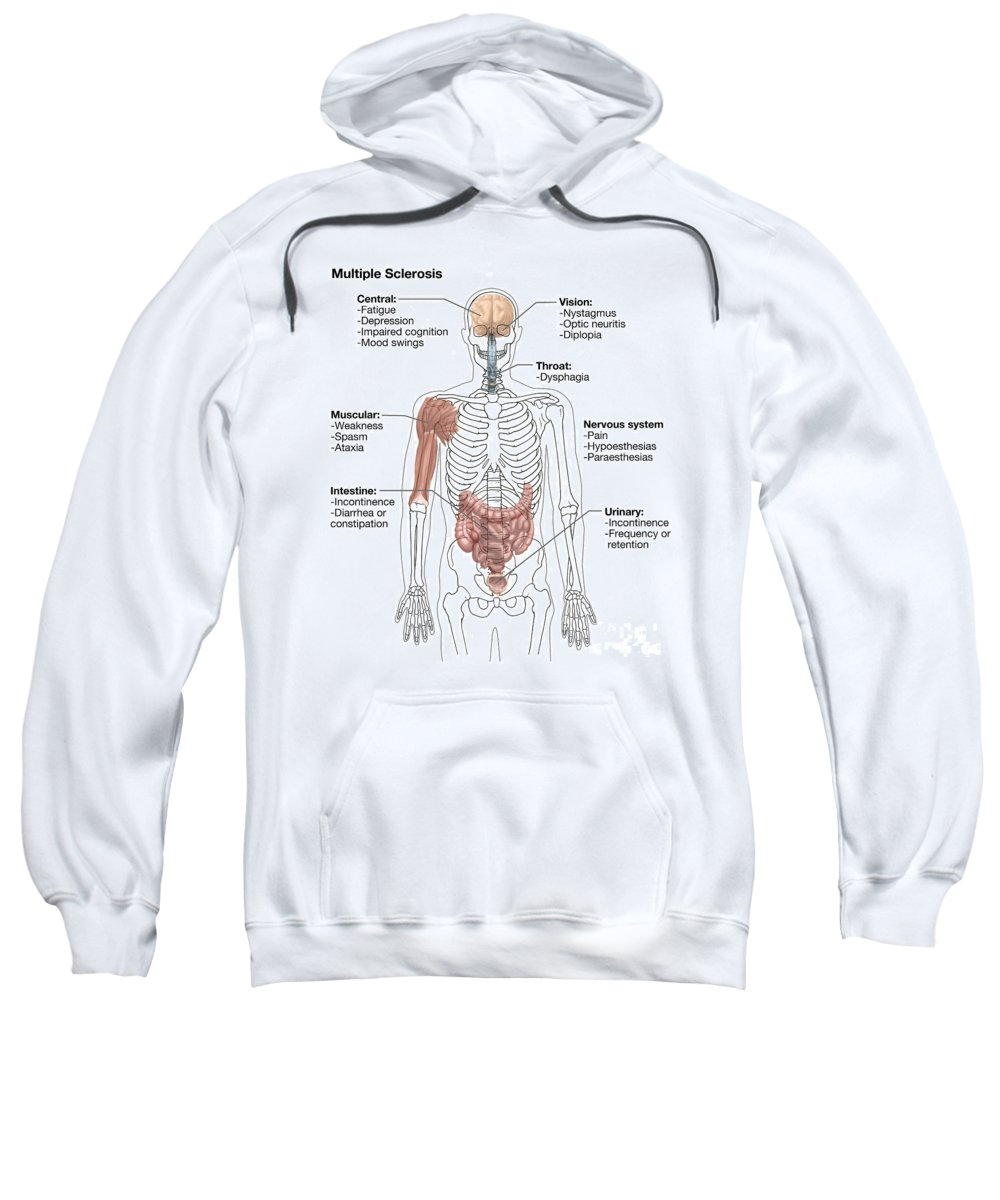 Hypoesthesia Sweatshirt featuring the photograph Multiple Sclerosis Symptoms by Spencer Sutton
