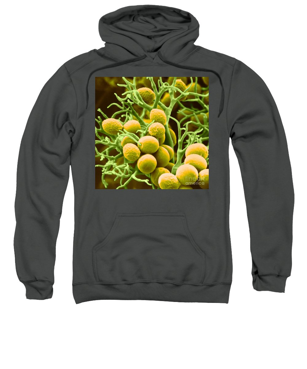 Histology Sweatshirt featuring the photograph Peronospora Parasitica by Biophoto Associates and Photo Researchers