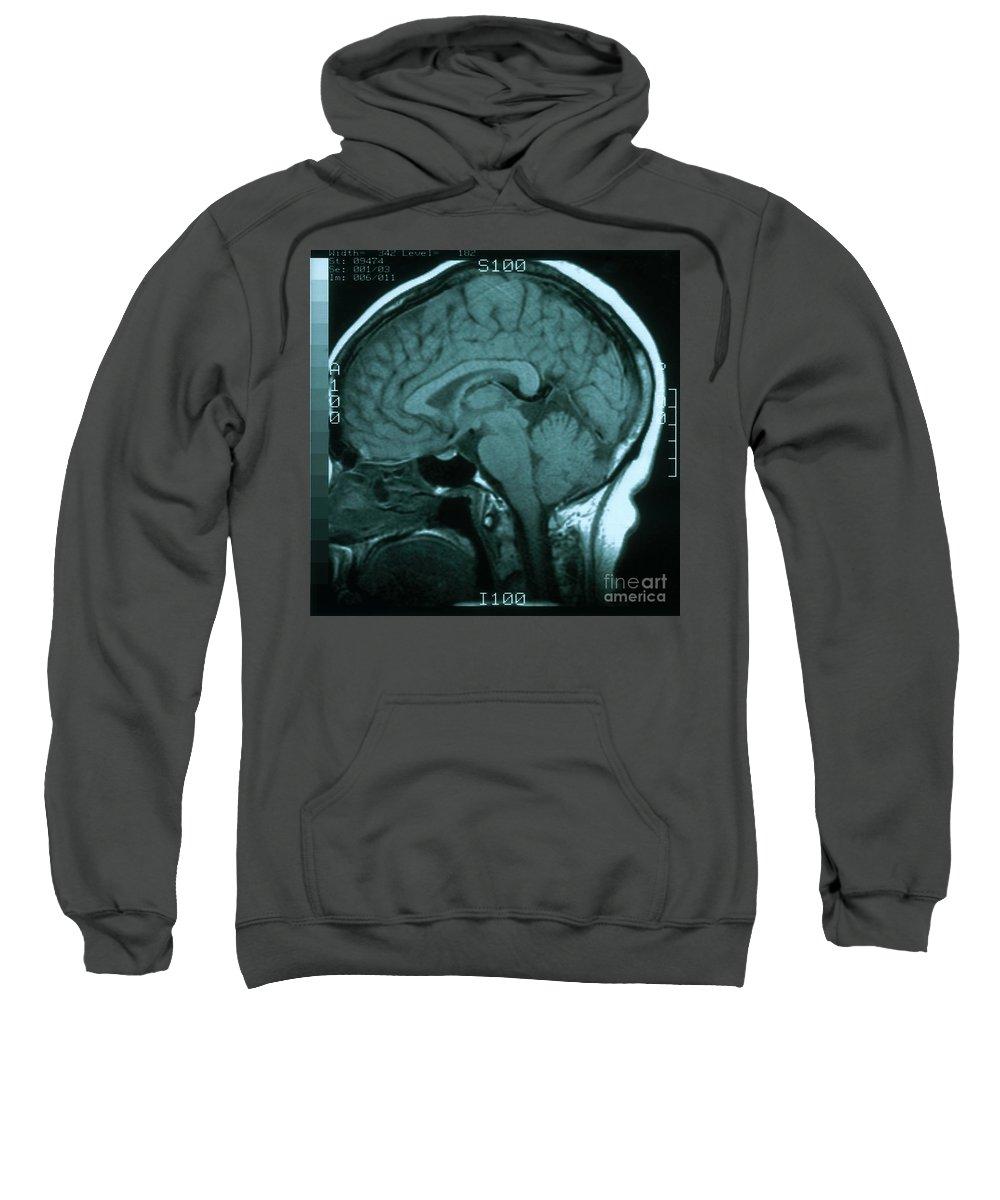 Brainstem Photographs Hooded Sweatshirts T-Shirts