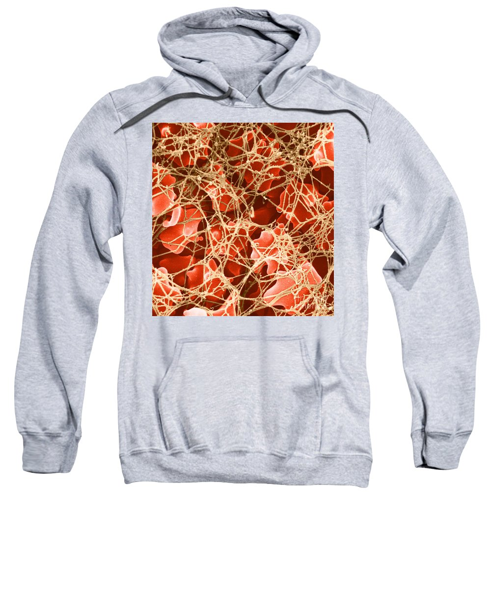 Science Sweatshirt featuring the photograph Blood Clot Sem, 2 Of 3 by David M. Phillips