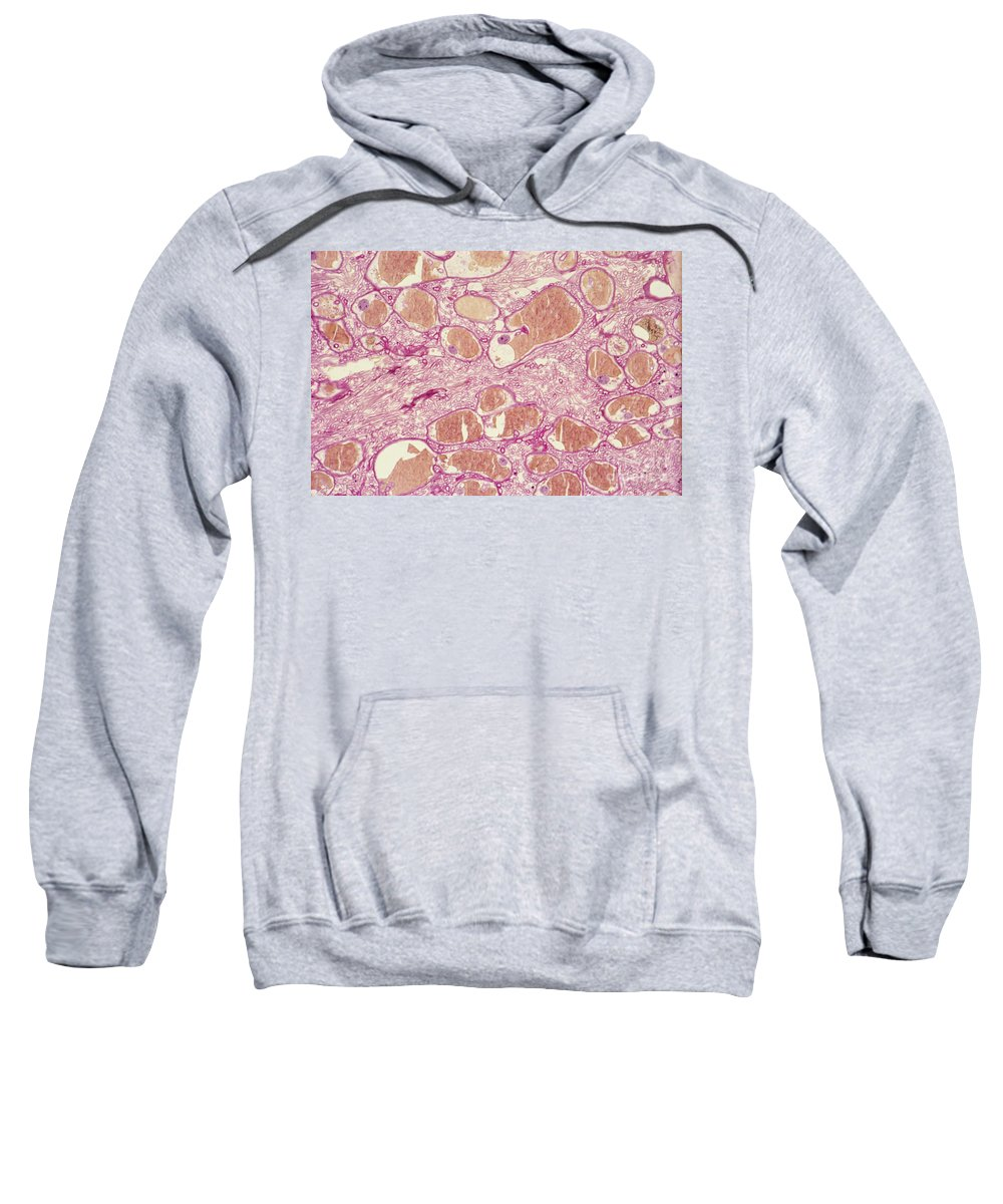 Light Micrograph Sweatshirt featuring the photograph Pine Blister Rust by M. I. Walker