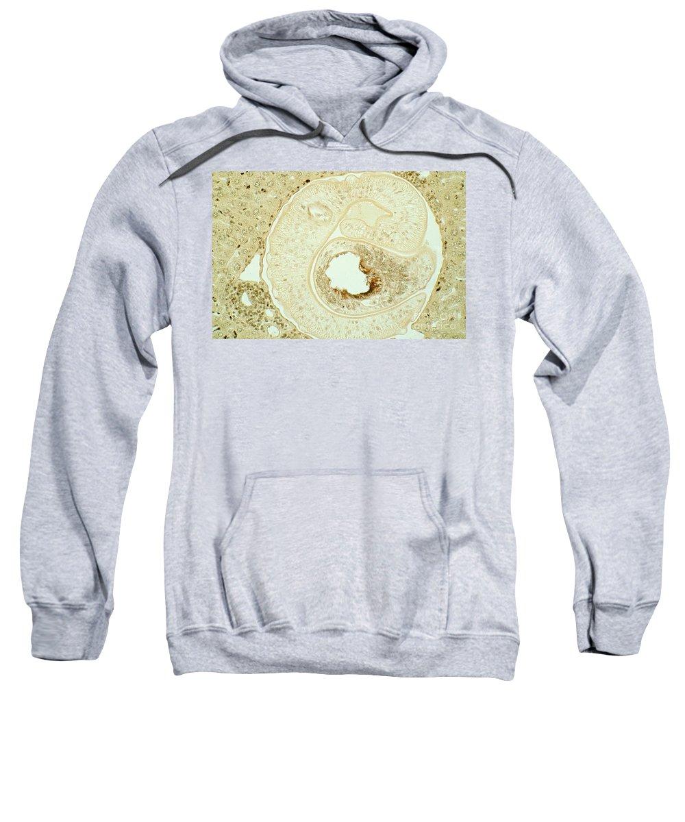 Pathology Sweatshirt featuring the photograph Schistosoma Mansoni by M. I. Walker