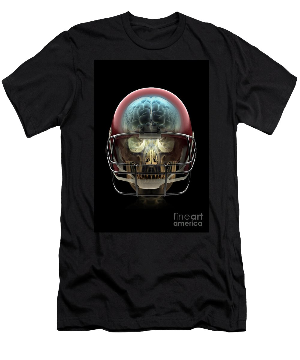Injure Men's T-Shirt (Athletic Fit) featuring the photograph Brain Injury by Science Picture Co